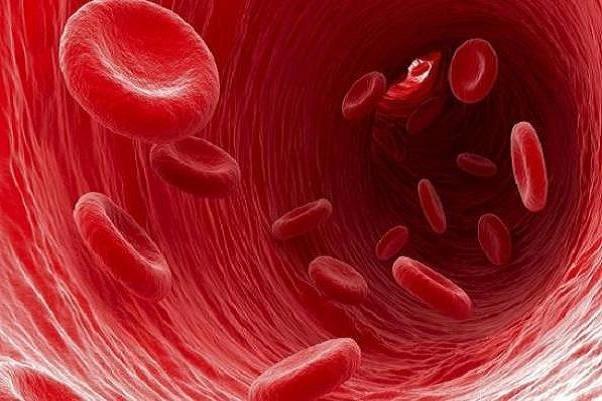 ارتباط میزان بالای آهن و ابتلا به دیابت و بیماری کبدی