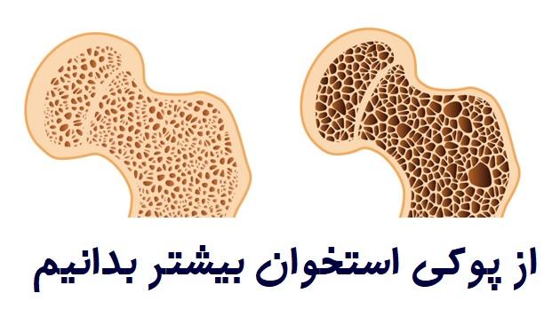 شکستگی های پوکی استخوان در زنان ۵ برابر مردان است