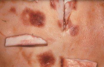 Diamond skin disease (Erysipelothrix rhusiopathiae)