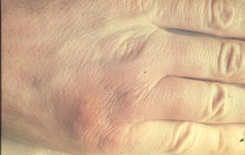 Human ertsipeloid (Erysipelothrix rhusiopathiae)