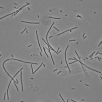 Phase contrast of Fusobacterium necrophorum A