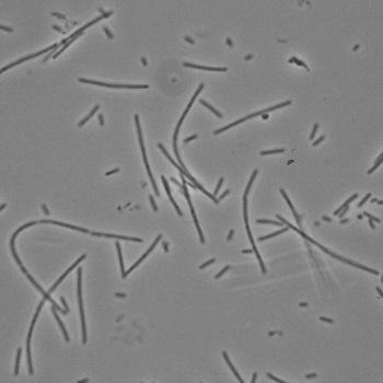 Phase contrast of Fusobacterium necrophorum A