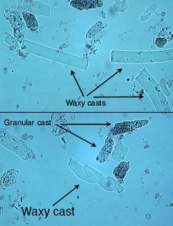 Waxy Casts