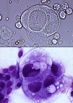 Neoplastic Cells