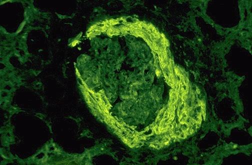 immunofluorescence micrograph of a glomerulus